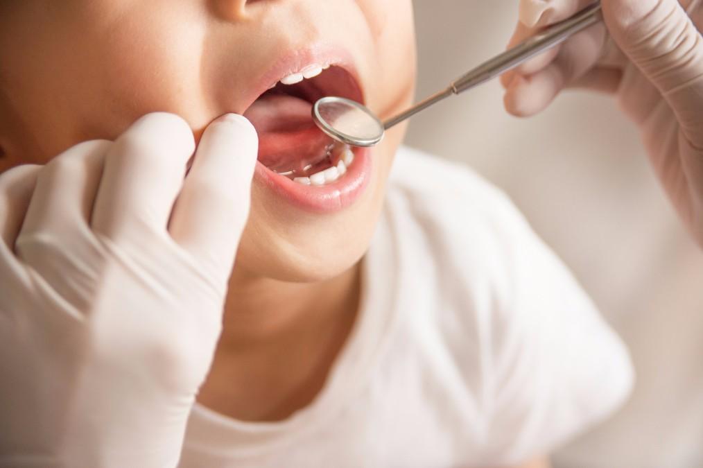 子供の虫歯の特徴と、予防のために親が知っておきたい5つのこと