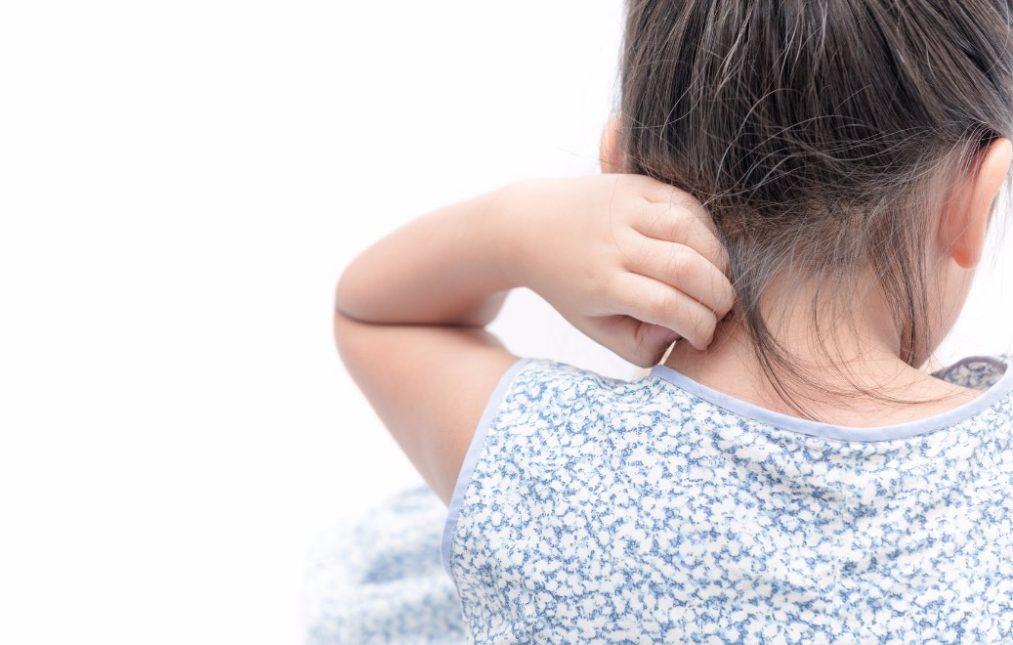 赤ちゃんを襲う「乳児アトピー」を、家庭でケアする5つの方法